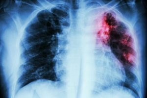 Stock image of x-ray of lungs with tuberculosis